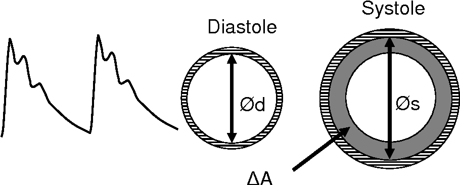 Figure 4 The arterial radial distension curve is obtained by recording the diameter change during the cardiac cycle. ΔA is the increase in cross-section area in response to the pressure pulse.