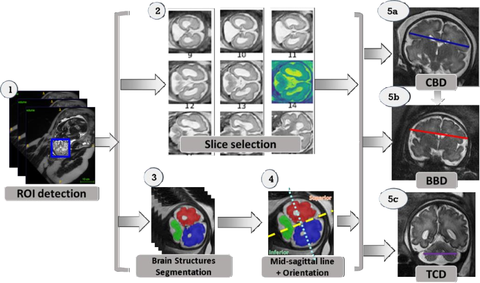 Figure 1 for Automatic linear measurements of the fetal brain on MRI with deep neural networks
