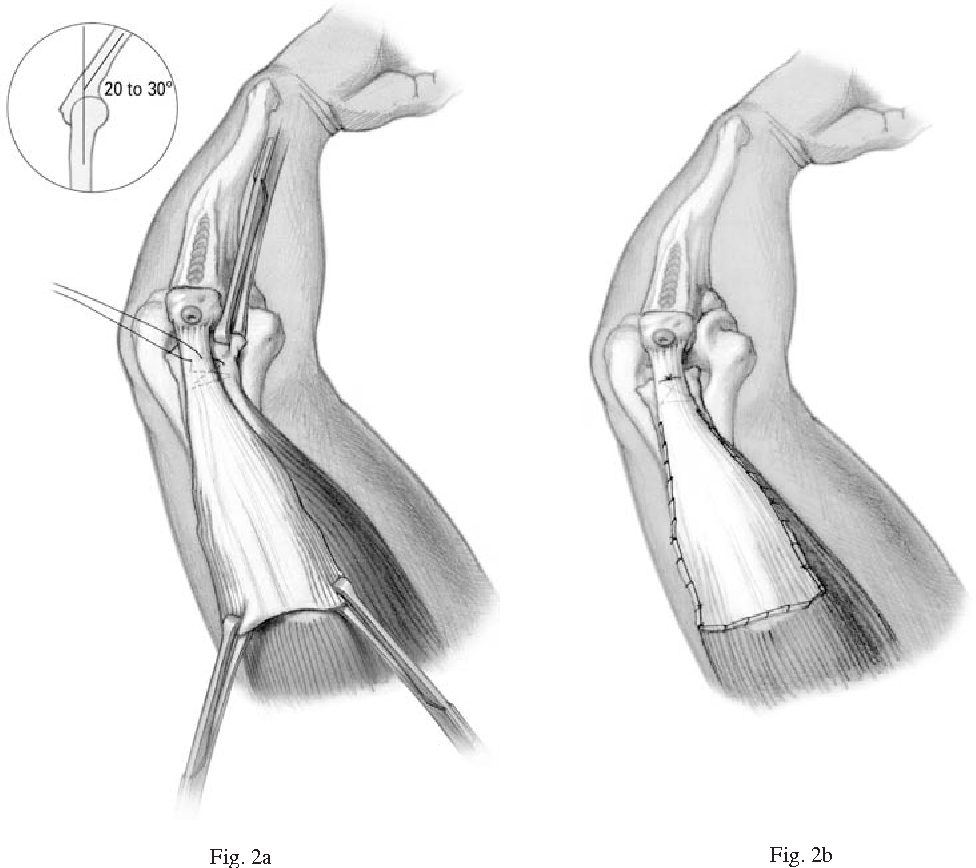 Surgical techniques for reconstruction of chronic insufficiency of ...
