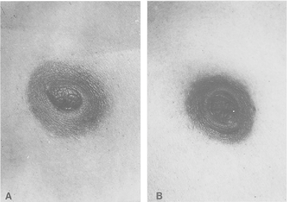 Figure 2 from Congenital inversion of the human nipple - Semantic ...