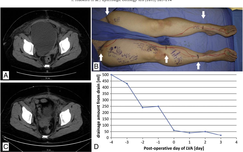 Figure 3 from Effective treatment of pelvic lymphocele by