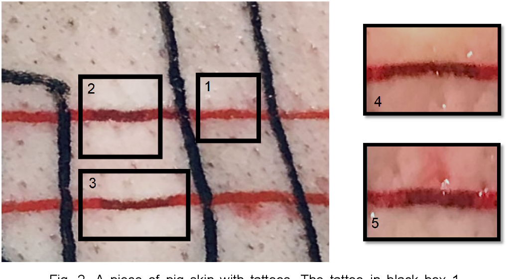 Figure 2 for Photoacoustic-monitored laser treatment for tattoo removal: a feasibility study