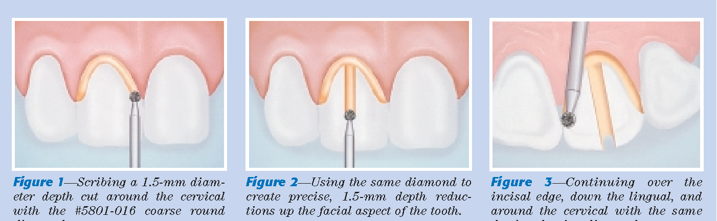 Figure 3—Continuing over the incisal edge, down the lingual, and around the cervical with the same depth-reduction diamond.
