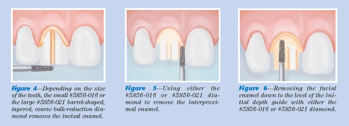 Figure 6—Removing the facial enamel down to the level of the initial depth guide with either the #5856-016 or #5856-021 diamond.