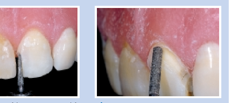 Figure 5—Breaking contact with the #5858-014 diamond on a demonstration model in which natural teeth are mounted.