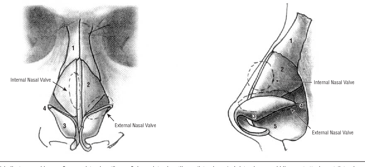 Nasal valve reconstruction: experience in 53 consecutive patients ...