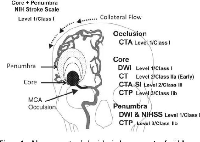 PDF] The Massachusetts General Hospital acute stroke imaging