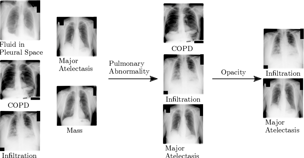 Figure 3 for Deep Hiearchical Multi-Label Classification Applied to Chest X-Ray Abnormality Taxonomies
