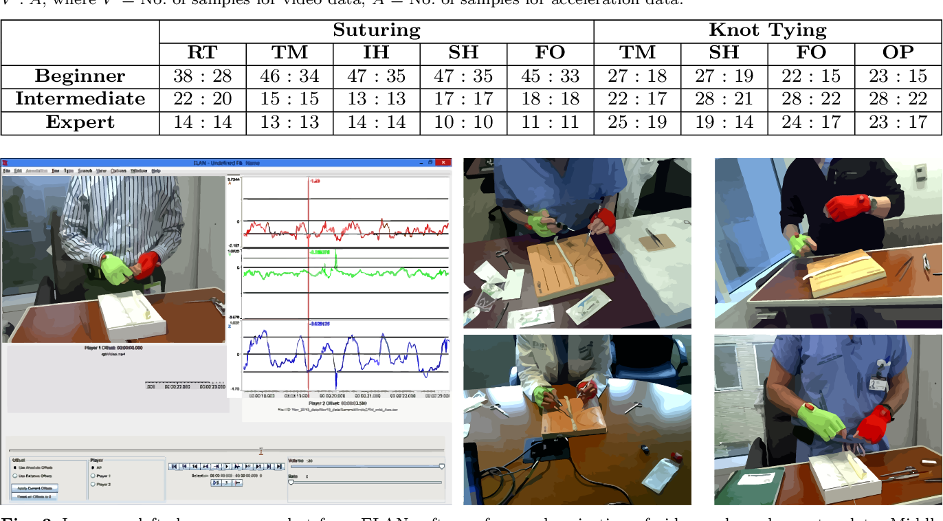 Figure 2 for Video and Accelerometer-Based Motion Analysis for Automated Surgical Skills Assessment