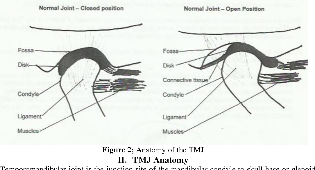 Concepts of TMD Etiology : Effects on Diagnosis and Treatment ...