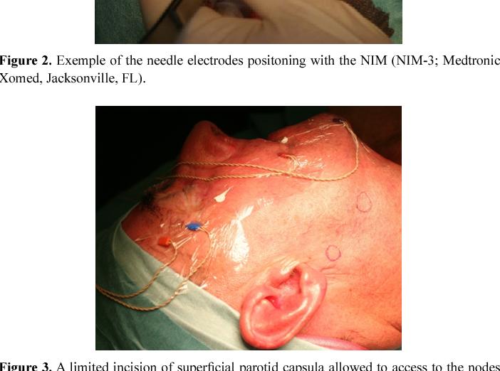 Nimms facial nerve electrodes situation familiar
