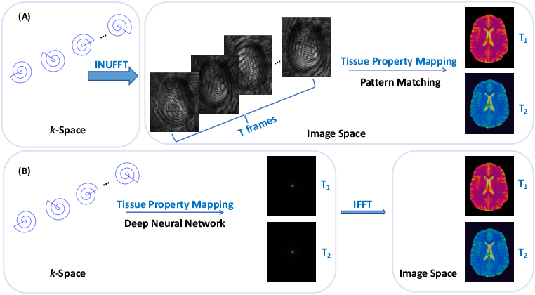 Figure 1 for Real-Time Mapping of Tissue Properties for Magnetic Resonance Fingerprinting
