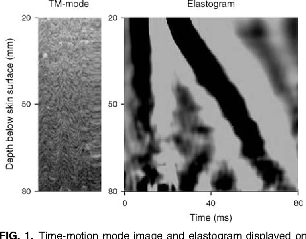 FIG. 1. Time-motion mode image and elastogram displayed on the screen of FibroScan during liver stiffness measurement.