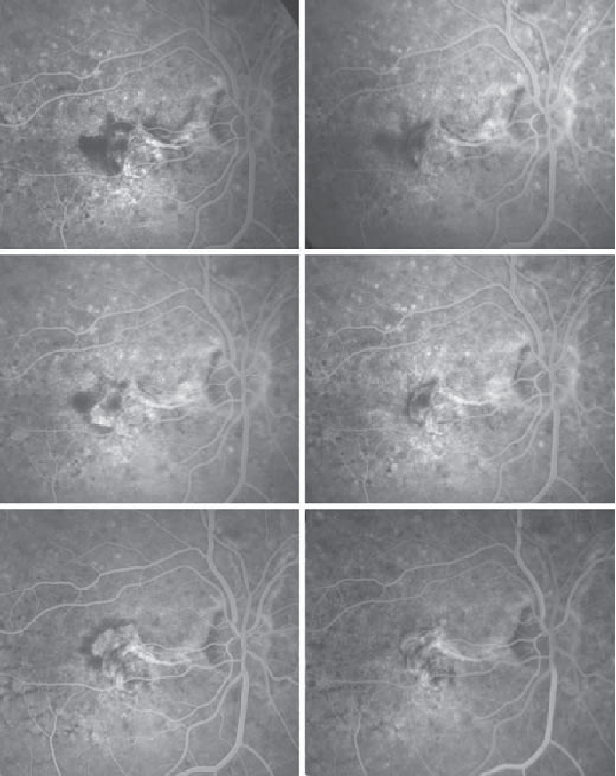 Figure 2 From Intravitreal Bevacizumab Avastin For Choroidal