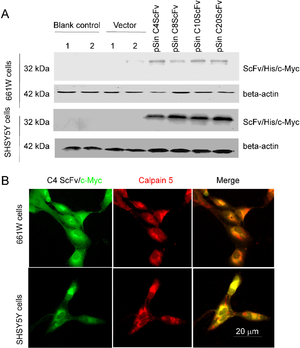 Figure 5 from An anti-CAPN5 intracellular antibody acts as an