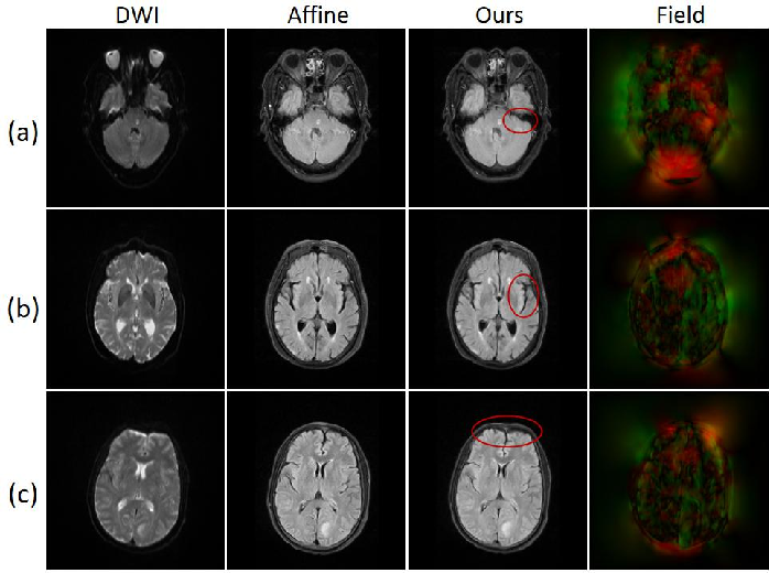Figure 1 for A coarse-to-fine framework for unsupervised multi-contrast MR image deformable registration with dual consistency constraint