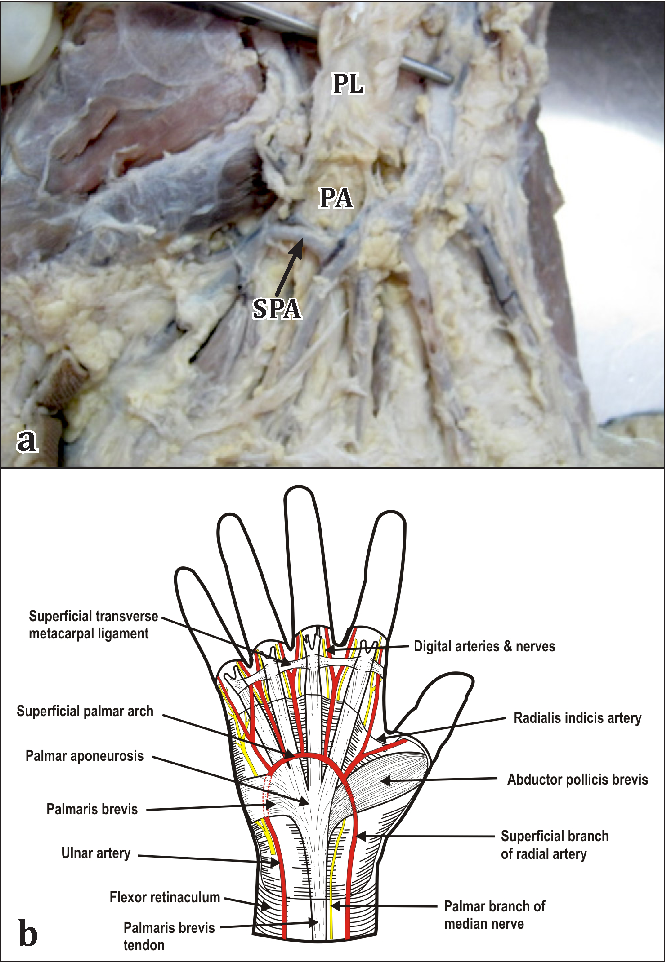Subcutaneous superficial palmar arch – an unusual variant - Semantic ...