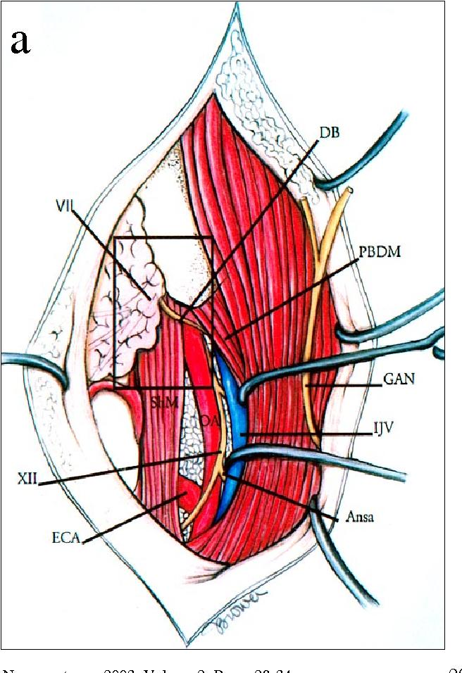 Microsurgical Anatomy Of The Retroauricular Transcervico Mastoid
