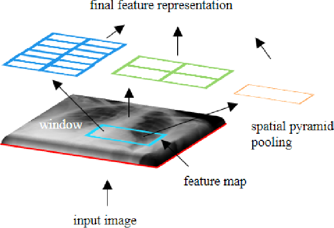 Figure 3 for Sparsity-based Convolutional Kernel Network for Unsupervised Medical Image Analysis