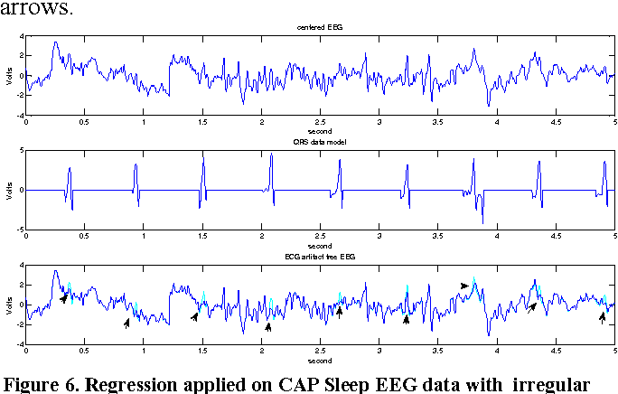 Figure 6 from Robust ECG artifact removal from EEG using