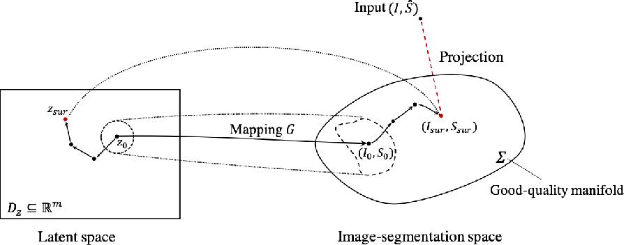 Figure 1 for Deep Generative Model-based Quality Control for Cardiac MRI Segmentation