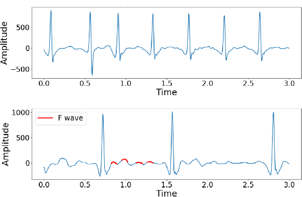 Figure 2 for Electrocardiogram Classification and Visual Diagnosis of Atrial Fibrillation with DenseECG