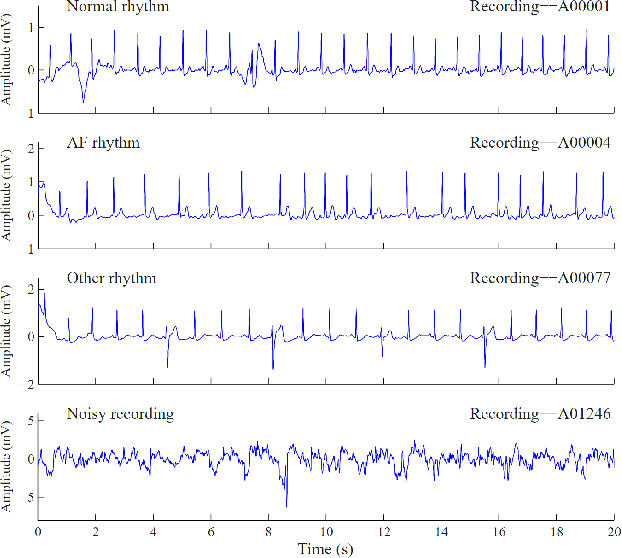 Figure 3 for Electrocardiogram Classification and Visual Diagnosis of Atrial Fibrillation with DenseECG