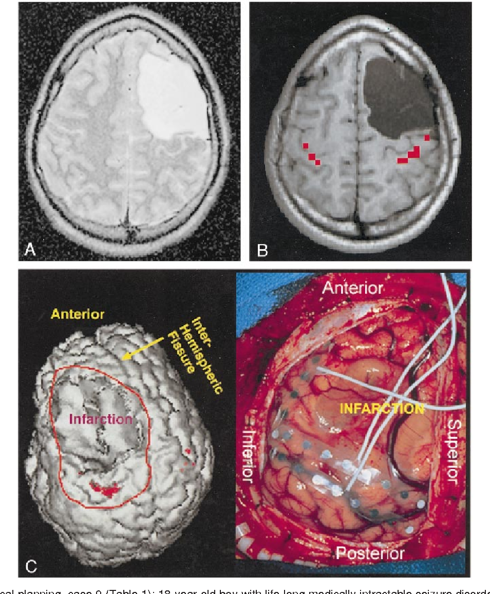 Figure 4 from Assessment of functional MR imaging in neurosurgical  planning. - Semantic Scholar