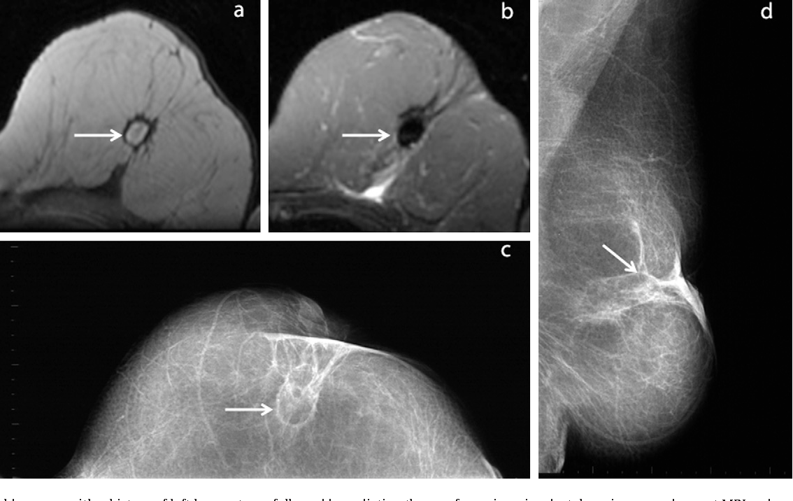 Figure 2 from MRI of fat necrosis of the breast: the