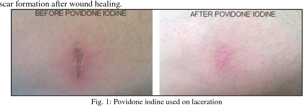 PDF] A Comparative Study Between Topical Povidone Iodine and Normal