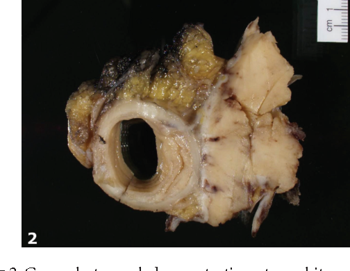 PDF] Solitary Fibrous Tumor of the Sigmoid Colon Masquerading as an
