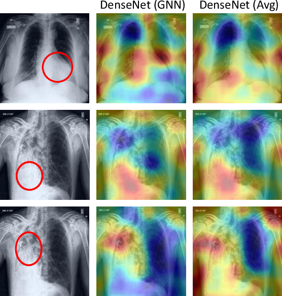 Figure 4 for Learning Decision Ensemble using a Graph Neural Network for Comorbidity Aware Chest Radiograph Screening