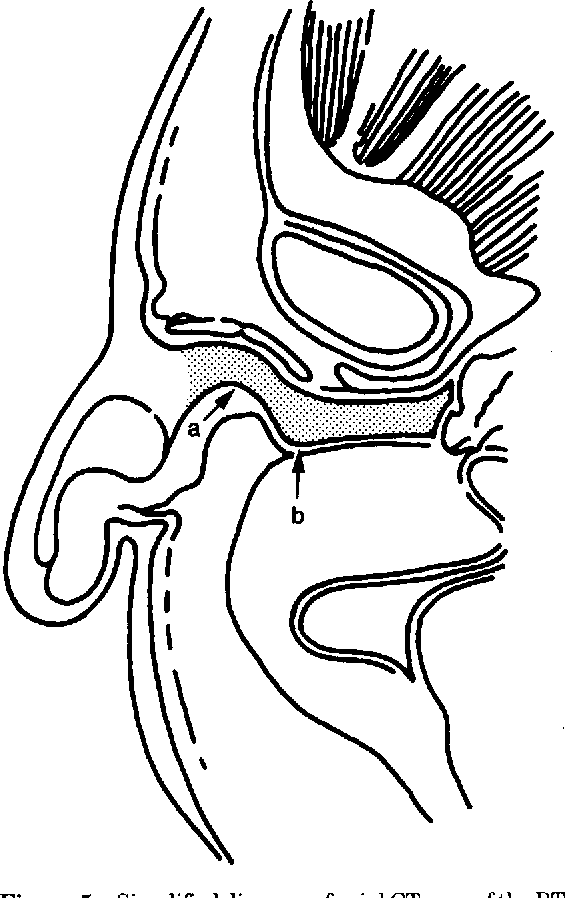 Figure 5 from Anatomy and orientation of the human external ear ...