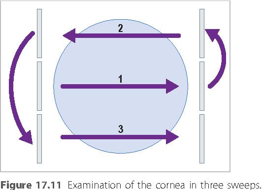 figure 17.11