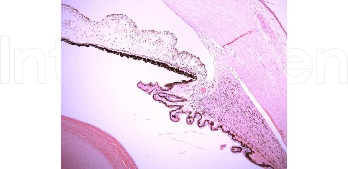 Anatomy Of Ciliary Body Ciliary Processes Anterior Chamber Angle