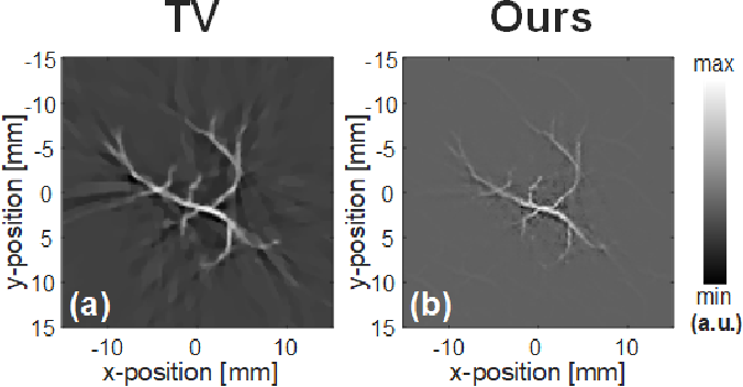 Figure 4 for Compressed Sensing for Photoacoustic Computed Tomography Using an Untrained Neural Network