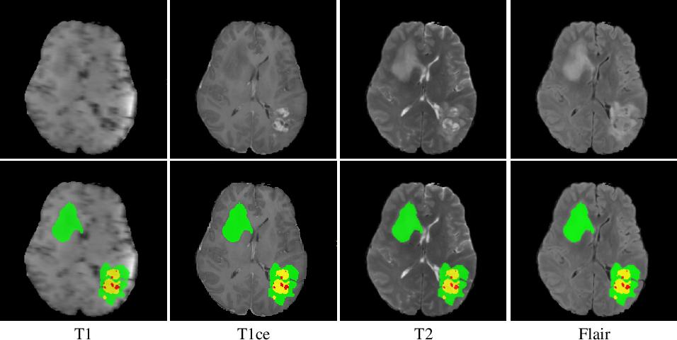 Figure 1 for H2NF-Net for Brain Tumor Segmentation using Multimodal MR Imaging: 2nd Place Solution to BraTS Challenge 2020 Segmentation Task