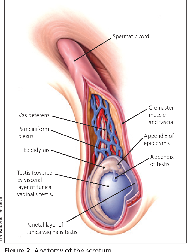 Figure 2 from Evaluation of scrotal masses. - Semantic Scholar