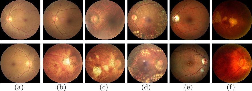 Figure 1 for A Benchmark of Ocular Disease Intelligent Recognition: One Shot for Multi-disease Detection