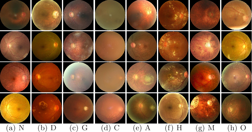Figure 3 for A Benchmark of Ocular Disease Intelligent Recognition: One Shot for Multi-disease Detection