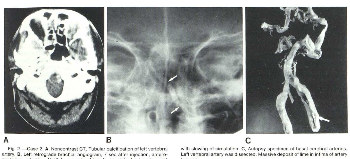 Figure 2 From Calcification Of The Vertebral Artery Semantic Scholar