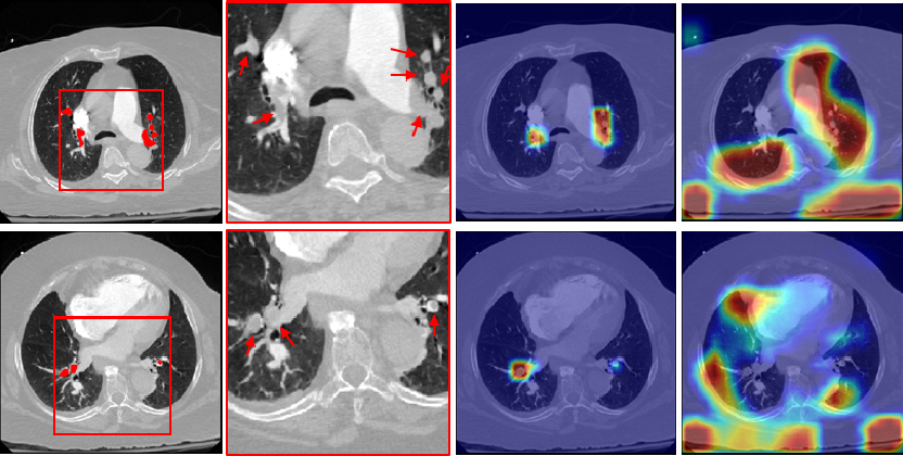 Figure 3 for Automatic Diagnosis of Pulmonary Embolism Using an Attention-guided Framework: A Large-scale Study
