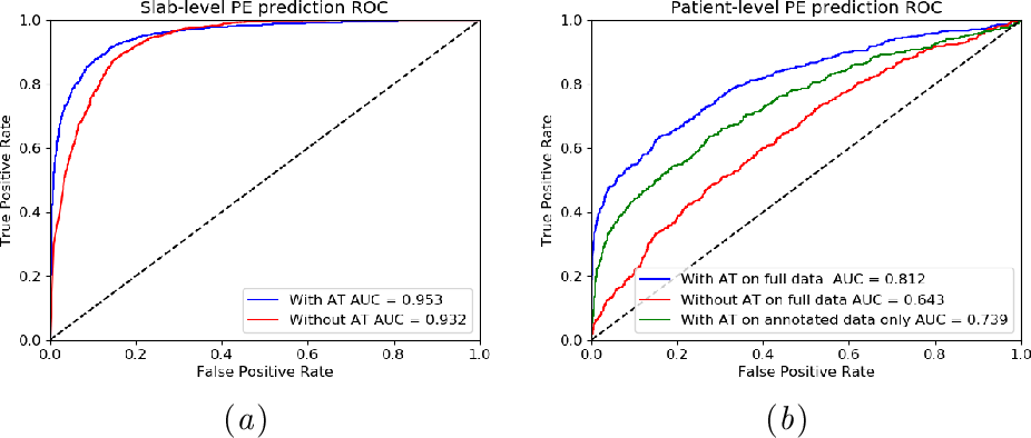 Figure 4 for Automatic Diagnosis of Pulmonary Embolism Using an Attention-guided Framework: A Large-scale Study