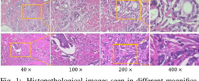 Figure 1 for Magnification-independent Histopathological Image Classification with Similarity-based Multi-scale Embeddings