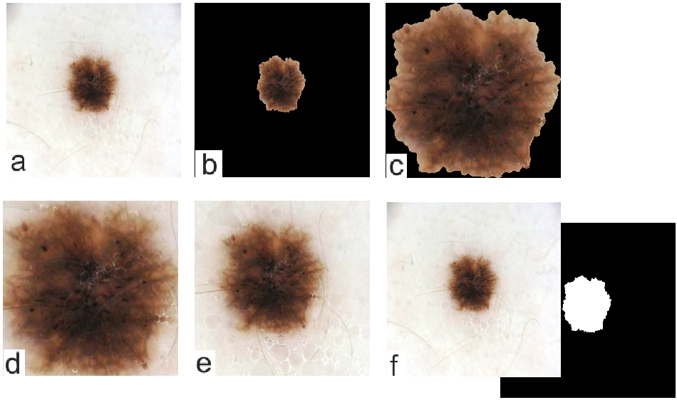 Figure 3 for The Effects of Skin Lesion Segmentation on the Performance of Dermatoscopic Image Classification