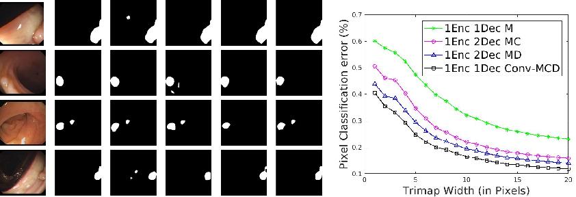 Figure 3 for Conv-MCD: A Plug-and-Play Multi-task Module for Medical Image Segmentation