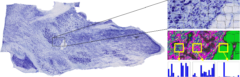 Figure 1 for Robust Landmark Detection for Alignment of Mouse Brain Section Images