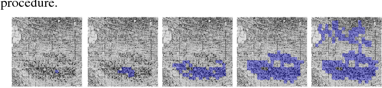 Figure 2 for Robust Landmark Detection for Alignment of Mouse Brain Section Images