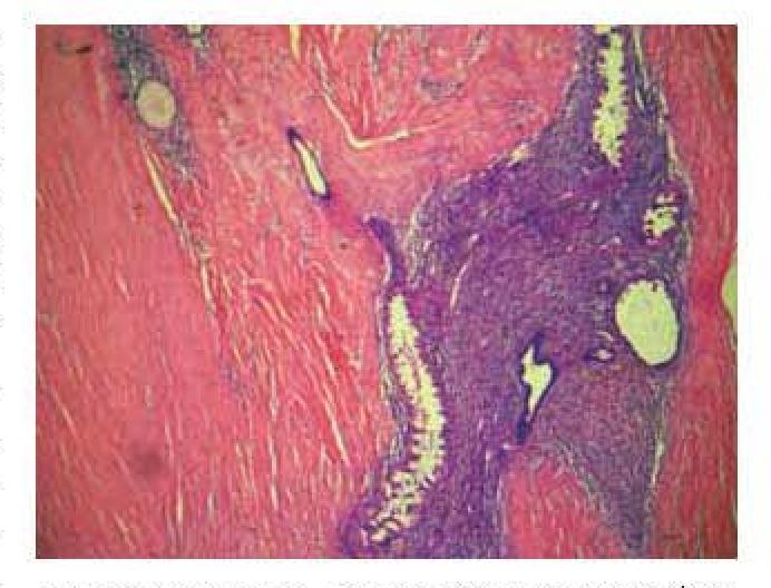 Figure 1 from Rectus abdominis muscle endometriosis after cesarean ...