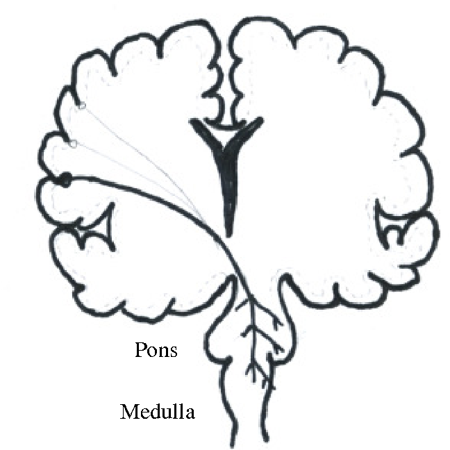 Figure 1 From Evaluation Of Upper Motor Neuron Pathology In